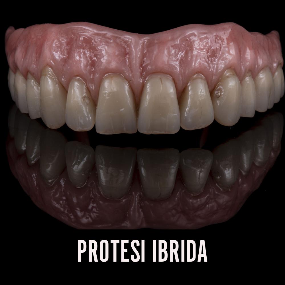 Protesi ibrida